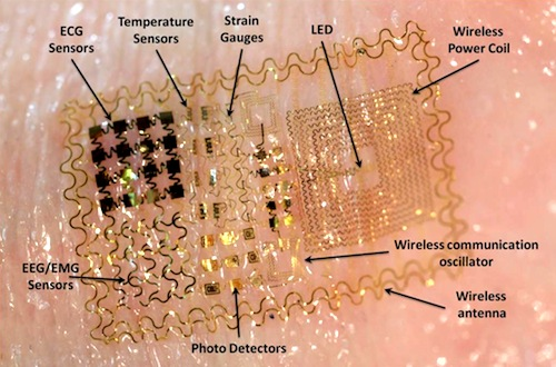 bioelectronic tattoo