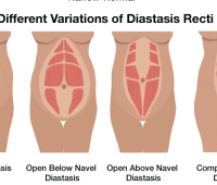 What is Diastasis Recti 2